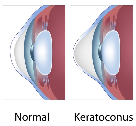 Keratoconus-final