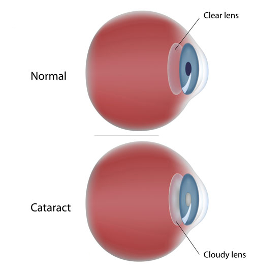 cataract-vs-clear-lens_