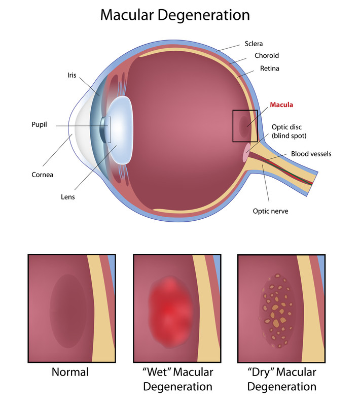macular degen