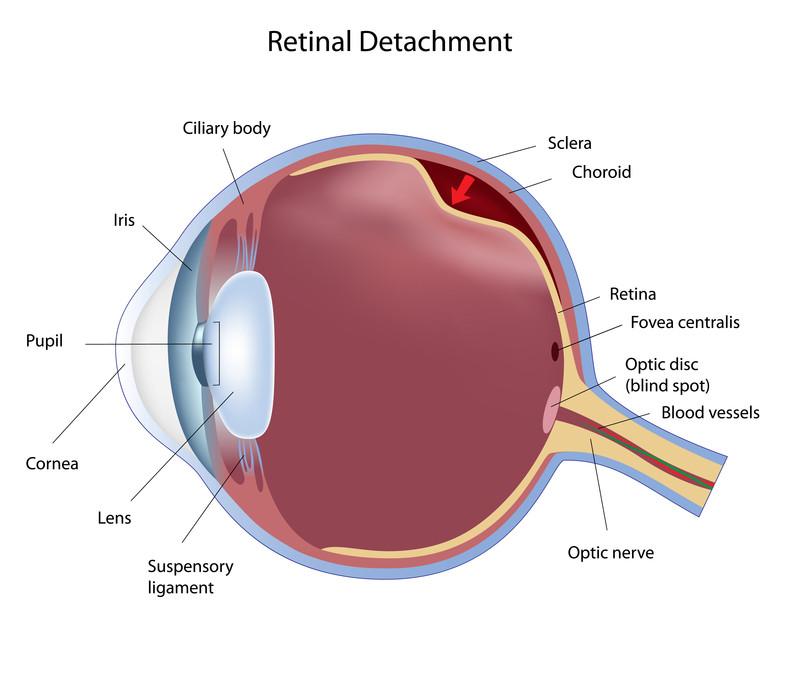 retinal detach pic