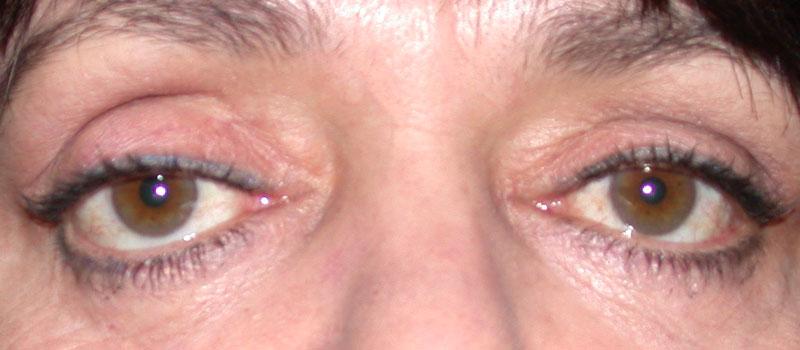 Eye Pain Watering Sensitivity To Light Decoratingspecial Com